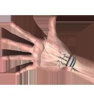 Wrist Orthopedic Surgeons Long Island Ny
