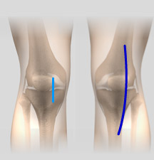 minimally-knee-replacement